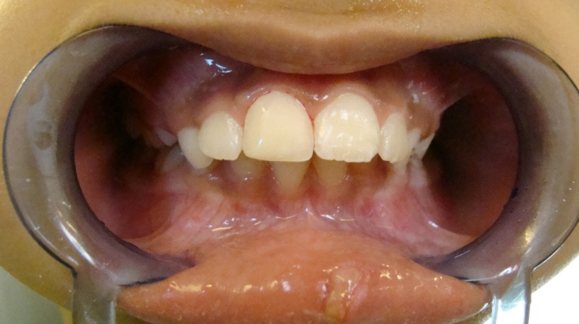 Cosmetic Tooth-Coloured Restorations