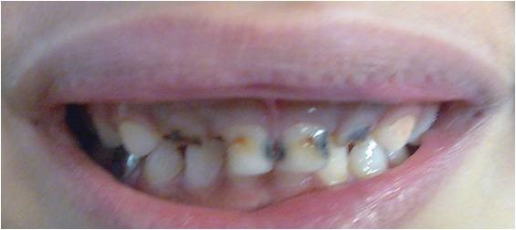 RESTORATIONS/ FILLINGS - Pre-Operative Photograph