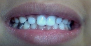 RESTORATIONS/ FILLINGS - Post-Operative Photographs