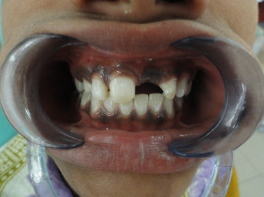 REMOVABLE PARTIAL DENTURE - Pre-Operative Photographs
