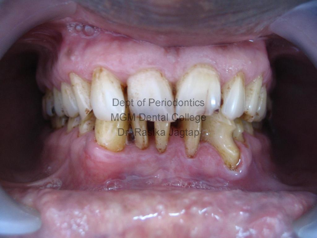 Scaling/Cleaning Of Teeth-Post-Treatment
