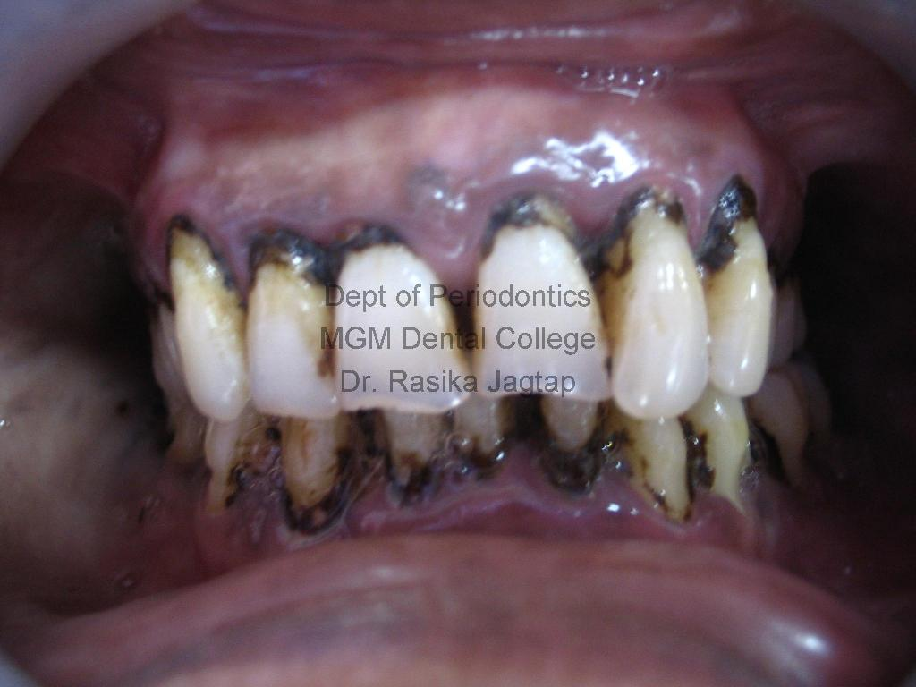 Scaling/Cleaning Of Teeth-Pre-treatment