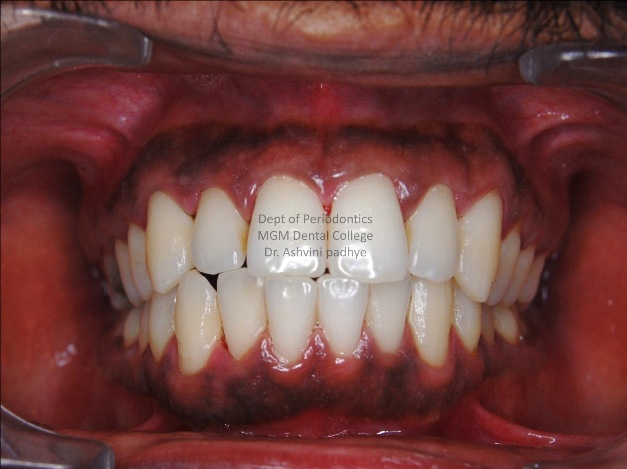 Gingival Depigmentation (Pre-Operative)