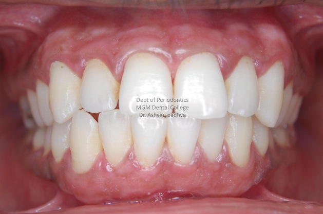 Gingival Depigmentation (Post-Operative)