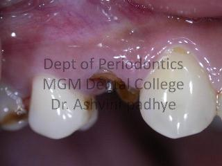 Dental Implants (Fractured Root Piece)